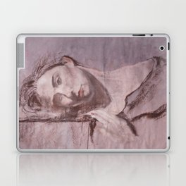 Day Dreams of Affection  Laptop & iPad Skin