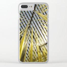 Noodles Clear iPhone Case