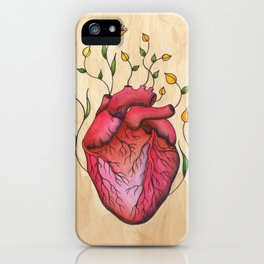When You Don't iPhone Case