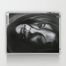 What Have You Done To Me? Laptop & iPad Skin
