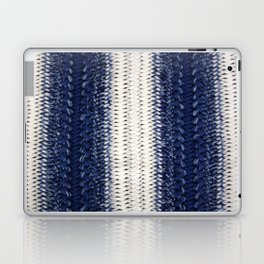 Dip-dye Crochet Laptop & iPad Skin