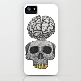 Losing my mind iPhone Case