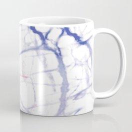 Gut Brain Coffee Mug