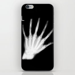 Extra Digit X-Ray iPhone Skin