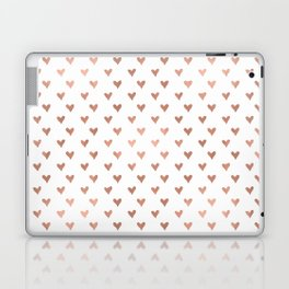 rose gold hearts Laptop & iPad Skin
