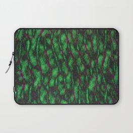 Closeup of Hulk's Brain Laptop Sleeve