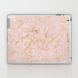 Farina Rosa en gold Laptop & iPad Skin