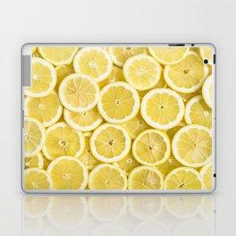 Lemon pattern #society6 #decor #buyart Laptop & iPad Skin