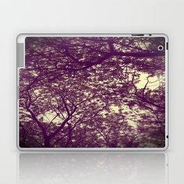 look up. Laptop & iPad Skin
