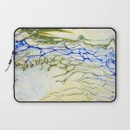 Anemone Laptop Sleeve