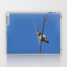 Scratch That Itch Laptop & iPad Skin