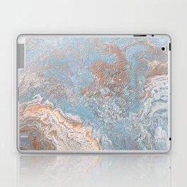 Rose Gold & Baby Blue Laptop & iPad Skin
