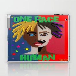 """ONE RACE... """"HUMAN"""". Laptop & iPad Skin"""