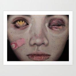Bruise Art Print