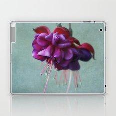 Dancing Laptop & iPad Skin