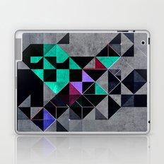 irony analyg Laptop & iPad Skin