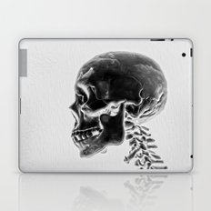 X-Ray Skull Laptop & iPad Skin