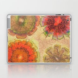 Nonpacificatory Structure Flowers  ID:16165-075207-87310 Laptop & iPad Skin