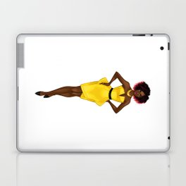 The Yellow Dress Laptop & iPad Skin