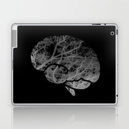 Mentalitree Laptop & iPad Skin