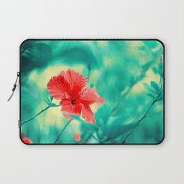 Tropical Exuberance II Laptop Sleeve