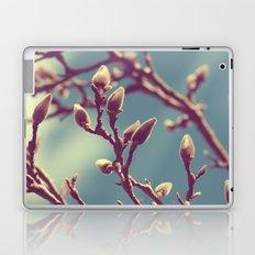 Will I Be Pretty? Laptop & iPad Skin