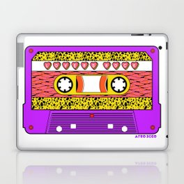LOVERS ROCK Laptop & iPad Skin