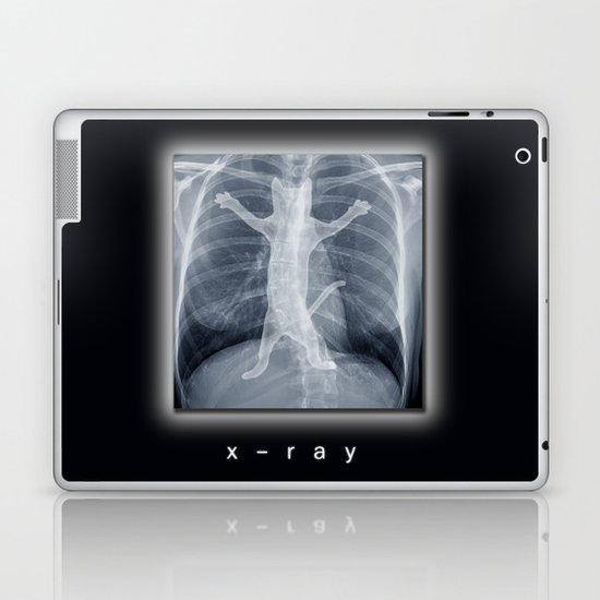 x-ray Laptop & iPad Skin