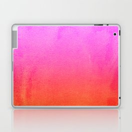 PINk Laptop & iPad Skin