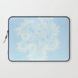 Blue Laptop Sleeve
