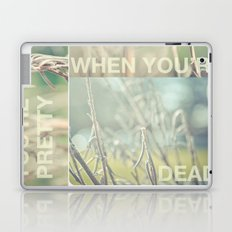 you're pretty when you're dead Laptop & iPad Skin