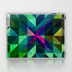 X Marks the Spot Laptop & iPad Skin
