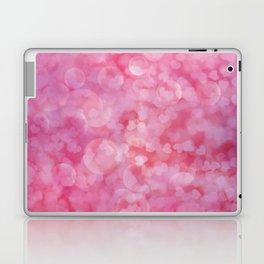 Everlasting Love Laptop & iPad Skin