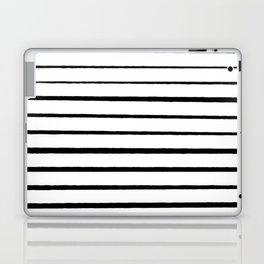 Black and White Rough Organic Stripes Laptop & iPad Skin