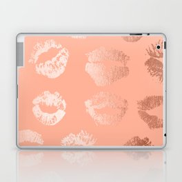 Sweet Life Lips Peach Coral Pink Shimmer Laptop & iPad Skin