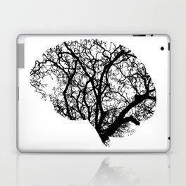 Brain Tree Laptop & iPad Skin