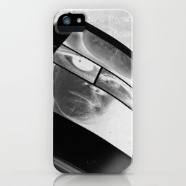 RM/2 iPhone Case