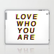 Love Who You Are  Laptop & iPad Skin