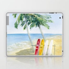Tropical View Laptop & iPad Skin