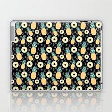 Black Pineapple Laptop & iPad Skin