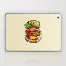Hamburger Laptop & iPad Skin