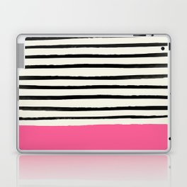 Watermelon & Stripes Laptop & iPad Skin