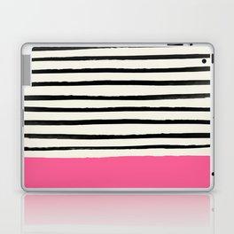 Watermelon & Stripes Laptop & iPad Skin