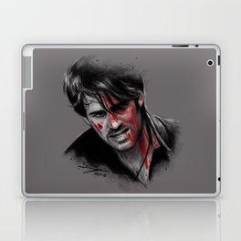 Broken, Beat & Scarred Laptop & iPad Skin