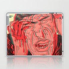 ST1 Laptop & iPad Skin