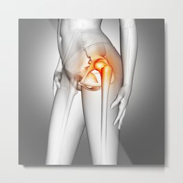 3D female medical figure with hip bone highlighted Metal Print