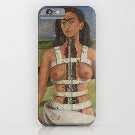 "Frida Kahlo Exhibition Art Poster - ""The Broken Column"" 1988 iPhone Case"