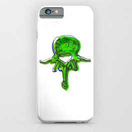Lumbar Vertebrae iPhone Case