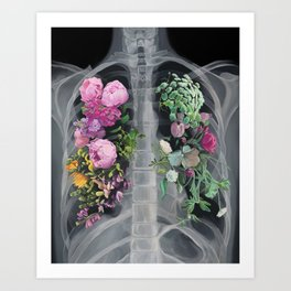 Pneumoflora X-Ray Art Print