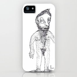 Hairy Jewish Man Who Was Born With Alligator Feet iPhone Case